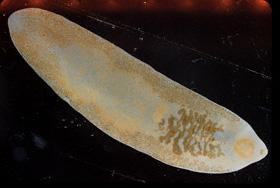 Fasciolopsiasis, a parasitic fluke